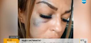 Жена твърди, че е била брутално пребита от полицай в Сандански (ВИДЕО)
