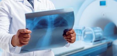 ЛЕЧЕНИЕТО НА ОНКОБОЛНИТЕ: Пациенти и специалисти се срещат с ръководството на НЗОК