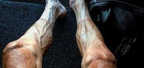 """Шокиращи снимки на краката на колоездач след """"Тур дьо Франс"""""""
