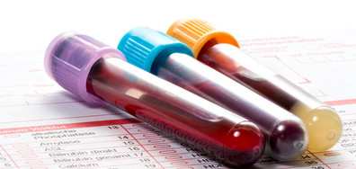 Първата ваксина срещу малария ще бъде тествана в три африкански държави