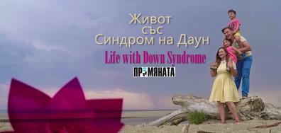 Известните личности в България са призовани да подкрепят Международния ден на хората със Синдром на Даун