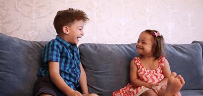 Детето ни се роди със Синдром на Даун. Какво да правим?